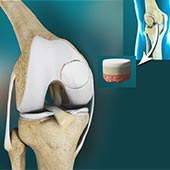 Osteochondral Defect of the Knee